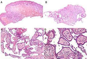 Aspecto histopatológico de la lesión. Hematoxilina-eosina. A) ×40. B) ×40. C) ×100. D) ×200.