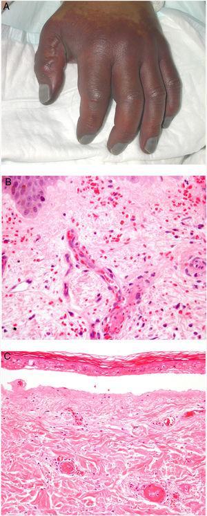 A: Lesión de gangrena simétrica periférica caracterizada por una placa isquémica bien delimitada en la mano izquierda con decoloración azulada de las uñas. B: Trombos de fibrina en vasos del plexo superficial y extravasación hemática dérmica (H&E 400x). C: Lesión de pocos días de evolución en CID. Formación de ampolla subepidérmica con epidermis necrosada y trombos de fibrina en pequeños vasos sanguíneos dérmicos (H&E 200x).