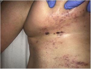 Carcinoma telangiectático en paciente con carcinoma de ovario en estadio IV. Placa eritematosa indurada en región mamaria con telangiectasias en superficie y lesiones pseudovesiculosas.