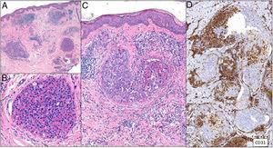 Trombos tumorales. Vasos dilatados en la totalidad de la dermis, con la luz totalmente ocupada por células pleomórficas de apariencia epitelial entremezcladas con hematíes. La inmunotinción con CD 31 demuestra la naturaleza intravascular de la proliferación tumoral (A: H&E 20x; B: H&E 400x; C: H&E 200x; D: CD31 100x).