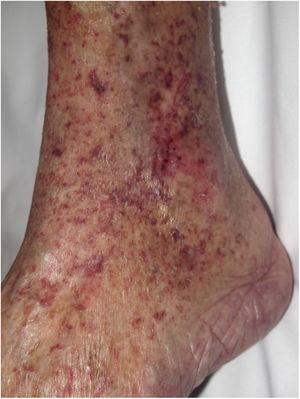 Ejemplo de púrpura en miembros inferiores tras el embolismo de material de revestimiento de un dispositivo intravascular en un paciente al que se le realizó reemplazo valvular intravascular.