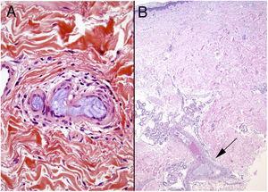 El aspecto histológico del material hidrófilo de revestimiento endovascular (A) es prácticamente indistinguible del ácido hialurónico (B). La disposición laminar del primero en algunos casos es la única diferencia.