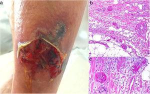 Calcifilaxis. A: Placa ulcerada y necrótica en miembro inferior con borde violáceo. B: Vasos trombosados en la dermis media (H&E 100x). C: Detalle de los vasos trombosados (H&E 200x).