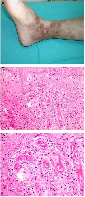 Vasculopatía livedoide. A: Mujer de 62 años afecta de lupus eritematoso e insuficiencia venosa que muestra en la extremidad inferior eritema, múltiples ulceraciones y discromía de la piel por hemorragia. B: Piel que muestra el desarrollo de agregados vasculares de carácter glomeruloide en la dermis superficial (H&E 100x). C: Foto de detalle de la anterior en la que se aprecia engrosamiento de la pared vascular, incremento del número de pericitos y depósitos de material fibrinoide eosinófilo y homogéneo. En torno al vaso se observa hemorragia, ocasionales macrófagos con hemosiderina, infiltrado linfomacrofágico y fibrosis colagénica perivascular (H&E 200x).