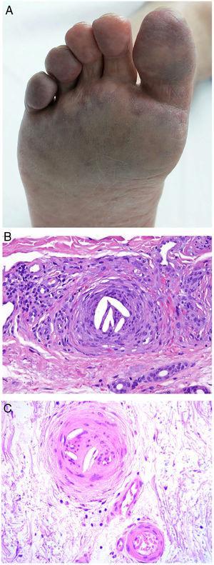 Émbolos por cristales de colesterol. Livedo reticularis planta pie derecho. B: Émbolos por cristales de colesterol. Espacios aciculares vacíos en el interior de un vaso sanguíneo. Dichos espacios contenían los cristales de colesterol que quedan disueltos durante el procesamiento de la biopsia. Hay respuesta de células gigantes multinucleadas rodeando los espacios aciculares vacíos (H&E 200x). C: Émbolos por cristales de colesterol. En la fase tardía puede haber fibrosis alrededor de los cristales, con oclusión completa de la luz del vaso sanguíneo (H&E 200x).