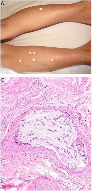 A: Émbolos de mixoma atrial. Máculas eritematosas, algunas residuales, salpicadas por la parte posterior de las extremidades inferiores. B: Émbolos de mixoma atrial. Dentro de una arteriola de la hipodermis se aprecia un material mixoide con numerosos vasos (H&E 20x).