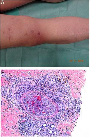 A: Angiosarcoma. Lesiones con aspecto livedoide o vasculítico. B: Oclusión de la luz del vaso por el crecimiento tumoral de un angiosarcoma (H&E 100x).