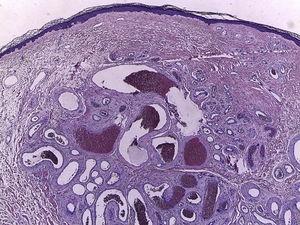 Proliferación vascular bien circunscrita en la dermis, con vasos revestidos por una única hilera de células endoteliales. Mientras que unos vasos presentan una pared fibromuscular gruesa, sin definitiva presencia de lámina elástica, otros vasos presentan una pared más delgada (H&E, ×40).