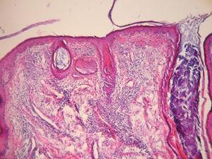 Tinción con hematoxilina-eosina. Obsérvese la epidermis aplanada con focos de vacuolización de la capa basal y un engrosamiento de la membrana basal, dilataciones foliculares con tapones córneos y comedones. En la dermis, un infiltrado inflamatorio perivascular y perianexial. Gentileza Dra. A.C. Innocenti.