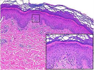 Corte histológico con detalle de espongiosis (recuadro negro).