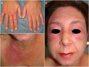 Lesiones cutáneas previas al inicio de tofacitinib. A: Pápulas de Gottron, eritema periungueal y costra hemorrágica en manos. B: Eritema y descamación facial y eritema en heliotropo de párpados. C: Signo en «V» del escote.