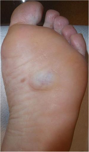 Imagen clínica donde se aprecia una lesión nodular, azulada, de aproximadamente 3cm de tamaño.