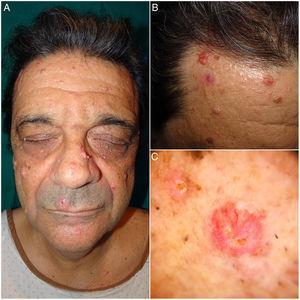 A y B) Imágenes clínicas de AS. Múltiples tumoraciones faciales de un color rosado de 5 a 25mm. C) Imagen dermatoscópica de un AS. Se identifican unos glóbulos amarillos pálidos sobre fondo eritematoso junto a unos vasos ramificados y tortuosos.