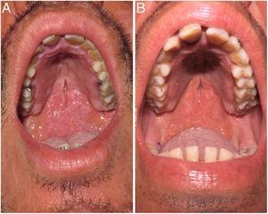 A) Placa infiltrativa en la mucosa del velo palatino. B) Aspecto clínico tras 2 semanas de tratamiento con multiterapia OMS (rifampicina, clofazimina, dapsona).