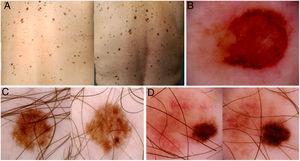 Imágenes de mapas corporales totales y de dermatoscopia de tres pacientes incluidos en el estudio. A) Se muestra la aparición de una lesión pigmentada palpable de novo en la región lumbar izquierda (círculo). B) Dermatoscopia de la lesión, mostrando asimetría estructural, policromía, retículo atípico y área central sin estructura. El estudio histopatológico demostró un melanoma con índice de Breslow 1,4 mm. C y D) Melanomas in situ diagnosticados por cambios dermatoscópicos en el seguimiento digital (crecimiento asimétrico, cambios focales de pigmentación, cambios focales de estructura).