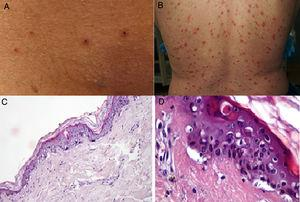 A y B) Pacientes con COVID-19 con exantema papulovesicular en tronco. En la imagen de la izquierda (A) se aprecian vesículas con costra varioliforme central. C y D) Cambios histopatológicos de pacientes con infección por COVID-19 y exantema variceliforme. C) Leve atrofia epidérmica, hiperqueratosis en canasta, degeneración vacuolar de la membrana basal con queratinocitos hipercromáticos multinucleados y disqueratinocitos. HE 10×. D) En mayor aumento se aprecia la alteración vacuolar con queratinocitos desorganizados con maduración alterada, queratinocitos multinucleados con células disqueratóticas. HE 40×. Fuente: Marzano et al.27.