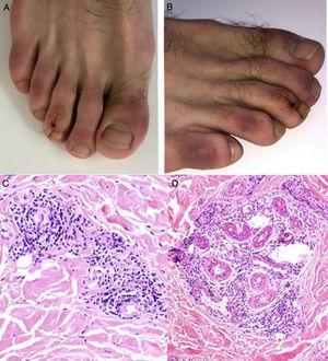 A y B) Placas violáceas infiltradas con fondo eritematoso en las regiones dorsal de los dedos y lateral de los pies. C y D) Biopsia de lesión en el tercer dedo del pie derecho, HE. C) Se observa infiltrado linfocítico con ocasionales células plasmáticas en estrecho contacto con los vasos, sin evidencia de fibrina o trombos. HE 40×. D) Se observa un infiltrado periecrino. HE 40×. Fuente: Kolivras et al.33.