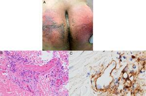 A) Paciente masculino de 32años con púrpura retiforme en glúteos 4 días posteriores al inicio de soporte ventilatorio mecánico por falla respiratoria aguda asociada a SARS-CoV-2. B) Biopsia de piel con una gran trombosis vascular pauciinflamatoria con daño de células endoteliales. HE 40×. C) Depósitos de C5b-9 dentro de la microvasculatura. Diaminobencidina 40×. Fuente: Magro et al.38.