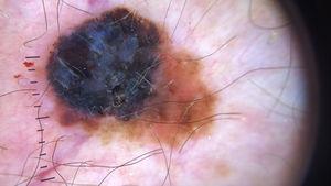 Se destaca el velo azul blanquecino en un melanoma grueso, definido como un área irregular y sin estructura, de pigmentación azul confluente con una película blanca de «vidrio esmerilado» superpuesta.