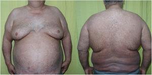 Resolución de la eritrodermia tras 400mg/24h de ciclosporina A durante 30 días. Hiperpigmentación residual.