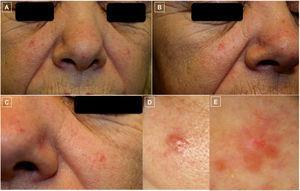 A-D) Fotos clínicas. Pápulas eritematosas bien delimitadas y telangiectasias dispersas en ambas mejillas y punta nasal (A-C). La pápula de mayor tamaño localizada en mejilla izquierda (D) fue la biopsiada. E) Foto dermatoscópica (E) que corresponde a la lesión previa donde se observan, en extremo superior, vasos lineales ramificados sobre un área sin estructura de coloración asalmonada y alguna zona blanquecina.