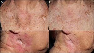 Imagen clínica de tumoración preesternal y de ángulo mandibular derecho antes (A) y tras 4 ciclos de pembrolizumab (B). Se aprecia el cierre de la fístula tumoral en el ángulo mandibular derecho tras el tratamiento (B inferior).
