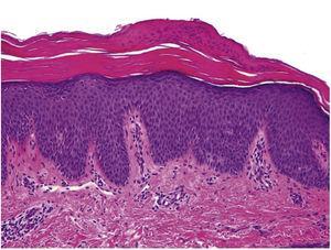 Ortoqueratosis alternando con focos de paraqueratosis (H-E, ×40). La epidermis presenta regular acantosis e hiperplasia psoriasiforme. Dermis con escaso infiltrado inflamatorio.