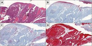 A) H/E, ×4, se evidencian células grandes con núcleos vesiculosos, nucléolo visible y citoplasma amplio, atipias celulares y numerosas mitosis atípicas. Se disponen en trabéculas, cordones celulares y nidos. Áreas de necrosis tumoral. B) IHQ, ×4, CEA positividad débil. C) IHQ, ×4, EMA positivo. D) IHQ, ×4, citoqueratina AE1-AE3 positivo.