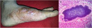 Actinomicetoma del pie. (A) Tumefacción con abundantes senos de secreción en el pie derecho. (B) La histopatología mostró infiltrado linfohistiocitario polimorfo con grano basófilo característico, rodeado de material eosinófilo (tinción hematoxilina-eosina x100).