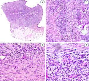 A) Panorámica de HF. B, C y D) A mayor aumento, haces y espirales de tejido fibroblástico y mesenquimal inmaduro. HF:.