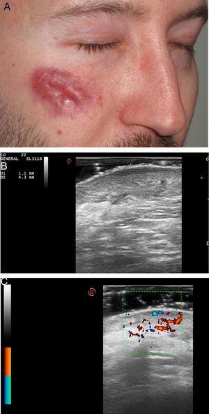 Granuloma facial. A) Caso 1: placa eritematoviolácea en la mejilla derecha. B) Lesión hipoecoica, heterogénea en dermis e hipodermis de 4,3mm de espesor. Se aprecia la banda hipoecoica subepidérmica (sonda de 22MHz, modo B). C) Aumento de la vascularización en modo Doppler color.