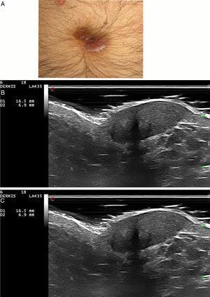 Granuloma facial. A) Caso 3: nódulo violáceo en el ombligo. B) Lesión hipoecoica, bien definida y heterogénea en dermis e hipodermis, de 6,9mm de espesor (sonda de 18MHz, modo B). C) Aumento marcado de la vascularización (sonda de 18MHz, modo Doppler color).