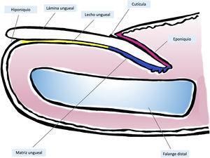 Anatomía macroscópica de la uña normal: el aparato ungueal está cubierto en su parte más proximal por el pliegue ungueal proximal. El epitelio de la cara ventral de este pliegue se denomina eponiquio (en rosa), y produce la cutícula verdadera (en negro), que se adhiere firmemente a la lámina. La matriz ungueal (en azul) se divide en matriz proximal y distal, es la productora de la lámina y se continúa distalmente con el lecho. Tanto la matriz como el lecho están cubiertos por la lámina ungueal. Finalmente, el lecho (en amarillo) termina distalmente en el hiponiquio.