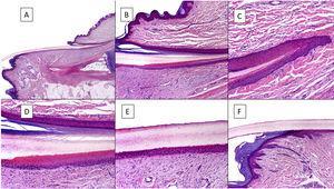 Anatomía histológica de la uña normal. A) Anatomía microscópica de la uña normal en un corte longitudinal. B) Detalle de la matriz ungueal y el eponiquio. C) Repliegue entre la matriz proximal y el eponiquio. D) En la porción inferior, se aprecia la típica queratinización sin capa granulosa de la matriz para formar la lámina con un aspecto similar a la queratinización tricolémica. En la porción superior, se aprecia el eponiquio con su queratinización ortoqueratósica característica. E) Detalle del lecho ungueal con su típica epidermis aplanada sin capa granulosa cubierta directamente por la lámina. F) Detalle del hiponiquio con una epidermis con queratinización ortoqueratósica de características similares a las del resto de la piel acra normal (no subungueal).