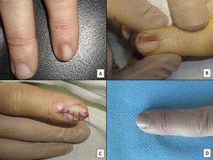 Biopsia longitudinal escisional del aparato ungueal. A) Melanoniquia longitudinal marrón pálido, que histológicamente correspondió a una hipermelanosis ungueal. B) Bajo anestesia local se realiza una exéresis longitudinal en forma de huso desde el pliegue ungueal proximal hasta el hiponiquio, incluyendo todo el aparato ungueal. C) Sutura por aproximación directa del defecto, desde la placa ungueal en la superficie hasta el tejido conectivo ungueal en profundidad. D) Tras un año, el resultado es una uña normal sin ningún signo de distrofia residual, únicamente más estrecha.