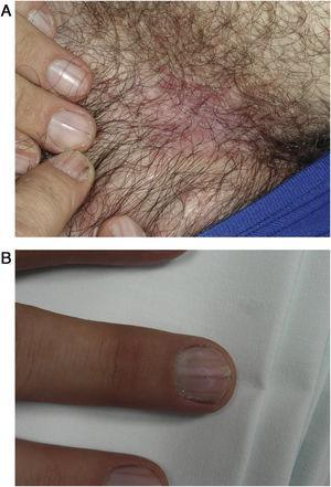 A) Placas eritematosas, carnosas, mal delimitadas, en pliegue inguinal. B) Lesiones presentes en todas las uñas de las manos.