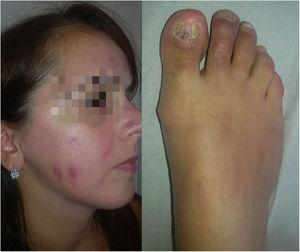 Evolución favorable a los 3 meses de tratamiento sistémico con prednisona asociada a hidroxicloroquina.