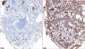 Inmunohistoquímica × 10. Izquierda: negatividad para cadenas kappa. Derecha: positividad para cadenas kappa.