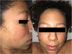 Imagen clínica. Obsérvese lentiginosis, queratosis pilar, cejas poco pobladas, filtrum nasal ancho, nariz bulbosa y pelo ensortijado.