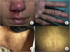 a) La leishmaniasis mucocutánea se manifiesta en forma de una úlcera crónica que frecuentemente afecta a la mucosa nasal. b) Leishmaniasis visceral en un paciente infectado por VIH con afectación cutánea en forma de pápulas firmes en palmas de las manos, y c) máculas hiperpigmentadas en zona cervical. d) Máculas hipopigmentadas como manifestación de una leishmaniasis cutánea post-kala-azar en un niño de 7 años. El diagnóstico se realizó mediante técnicas moleculares, ya que la biopsia fue negativa.
