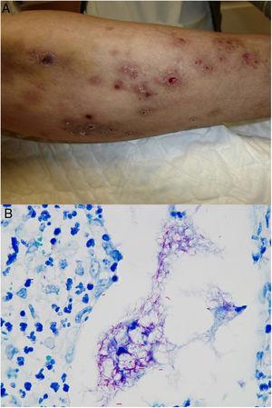 Ejemplo de infección por M.chelonae. A)Lesiones nodulares, dolorosas y supurativas, con ulceración superficial y formación de costra (Cortesía de la Dra. Rodríguez Blanco). B)Infección por M.chelonae. En ocasiones, los microorganismos tienden a agruparse en las áreas de supuración, donde pueden demostrarse con la tinción de Ziehl-Neelsen (Ziehl-Neelsen, ×1.000).
