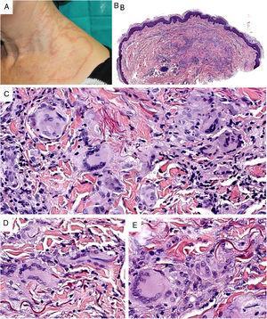 A)Granuloma actínico: grandes placas anulares de bordes sobreelevados eritematosos en área fotoexpuesta. B)La visión panorámica histológica muestra un infiltrado inflamatorio en dermis reticular. C-E)A mayor aumento se aprecia una lesión granulomatosa con numerosas células gigantes multinucleadas y elastofagocitosis, sin empalizada, aumento de mucina ni necrobiosis (B: H&E ×40; C y D: H&E ×400; E: H&E ×600).