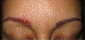 Sarcoidosis. Pápulas eritematosas en ambas cejas tras tatuaje cosmético (Cortesía Dr. J.F. Mir-Bonafé).