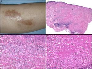 Necrobiosis lipoidea. A) Placa infiltrada de tonalidad eritemato-amarillenta y aspecto céreo, localizada en región pretibial. El centro de la placa, más claro, tiene un aspecto atrófico. B) En la visión panorámica se aprecia un infiltrado inflamatorio focal que parece dispuesto en capas más o menos paralelas a la epidermis, así como áreas de engrosamiento del colágeno, que se muestra intensamente eosinófilo. En la parte inferior de la biopsia, en dermis profunda, se observan agregados linfoides de distribución perianexial (H&E ×40). C) A mayores aumentos se observa un infiltrado inflamatorio granulomatoso intersticial, dispuesto entre haces de colágeno engrosado y necrobiótico. Pueden verse algunos histiocitos multinucleados (H&E ×200). D) En otra zona de la biopsia, a grandes aumentos, observamos un granuloma de disposición en empalizada, centrado por un área de marcada necrobiosis del colágeno (H&E ×400).