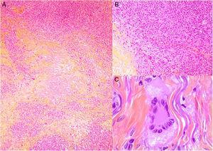 Histología del xantogranuloma necrobiótico. A) Infiltrado granulomatoso rodeando una zona central de necrobiosis eosinofílica con cristales de colesterol asociados (H&E ×40). B) El infiltrado histiocitario se acompaña de nódulos linfoides y células plasmáticas (H&E ×100). C) Detalle de una célula de Touton (H&E ×400).