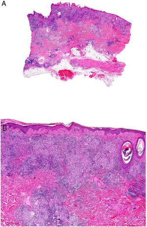 Enfermedad de Crohn. Dermatitis granulomatosa con múltiples granulomas en la dermis reticular, respetando la epidermis y la dermis papilar (A: H&E ×20). Los granulomas son similares a los que se observan en el tracto digestivo: no caseificantes, con células gigantes multinucleadas, y pueden tener un denso infiltrado linfocitario (B: H&E ×40).