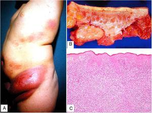 Piel laxa granulomatosa. A) Varón de 11 años con masas cutáneas infiltradas («piel redundante») y eritematosas en cintura pélvica. B) Pieza quirúrgica con engrosamiento dermo-hipodérmico. C) Infiltración linfoide difusa de la dermis (H&E ×40).