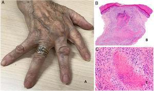 A) Artritis reumatoide. Aspecto clínico de 2 nódulos reumatoides en proximidad a las articulaciones interfalángicas de la mano. Tienen una superficie lisa y blanquecina, sin signos inflamatorios. B) Artritis reumatoide. Panorámica histológica de un nódulo reumatoide. En este caso la lesión alcanza zonas superficiales de la dermis y se extiende a tejidos profundos. Se reconoce una estructura de granuloma en empalizada con centro necrótico intensamente eosinófilo (H&E ×20). C) Artritis reumatoide. Detalle histológico del granuloma en empalizada que constituye la base histológica del nódulo reumatoide. Alrededor de un centro de necrosis fibrinoide de coloración intensamente eosinófila se dispone una capa de histiocitos en empalizada (H&E ×200).