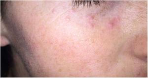 Acné agminata. Pápulas eritematosas periorbitarias.