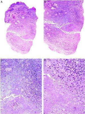 Acné agminata. A) Se observa una respuesta dérmica granulomatosa epitelioide necrosante y caseificante (A: H&E ×20; B: H&E ×40; C: H&E ×100 y D: H&E ×200).